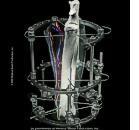 Chirurgia ortopedica 3D