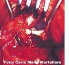 FCP e artrosi