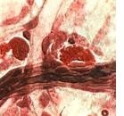 Mastociti&nervi nell'atopia