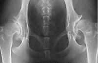 Artrosi dell'anca: predittivo il legamento