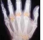 Una giornata contro l'artrite