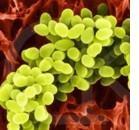 Mastociti e batteri: uniti nell'atopia