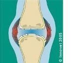 Quercetina: nuove evidenze nell'artrosi