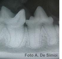 De Simoi e la malattia parodontale