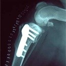 La chirurgia arresta l'artrosi?