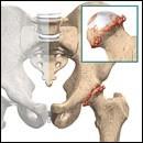 Artrosi dell'uomo: il trattamento è combinato