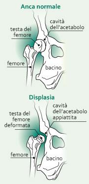 """Displasia dell""""anca"""