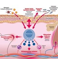 Dermatite atopica: tutta questione di barriera