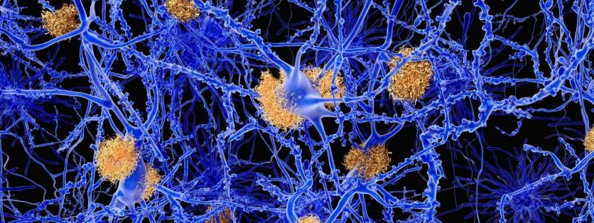 Proteina amiloide anche nel cervello dei cani giovani