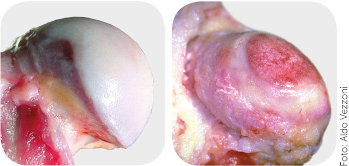 Artocolazione sana e articolazione in corso di artrosi