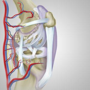 L'artrosi, una malattia che mette a rischio la vita
